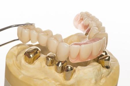 denture Banque d'images