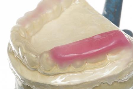 splint: bite splint