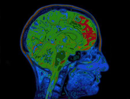 thinking brain: MRI Image Of Head Showing Brain