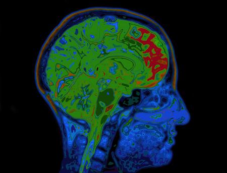 cerebro humano: RM imagen de la cabeza Mostrando Cerebro Foto de archivo
