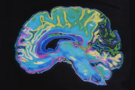 human mind: MRI Image Brain On Black Background Stock Photo