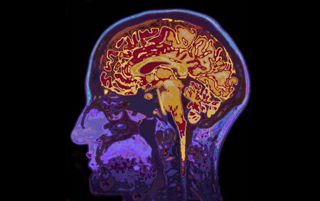 cerebro: RM imagen de la cabeza Mostrando Cerebro Foto de archivo