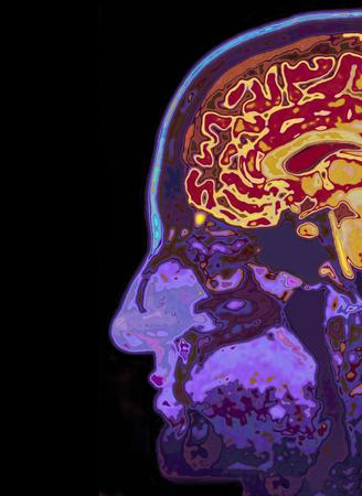 mri scan: MRI Scan Of Head Showing Brain