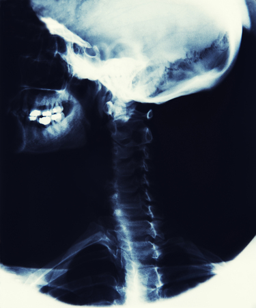x ray image: X Ray Image Showing Skull, Jaw And Spine Stock Photo