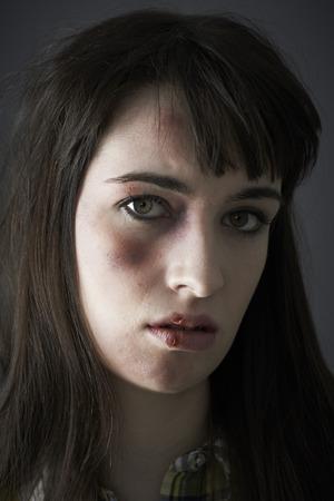 alone sad: Female Victim Of Domestic Abuse Stock Photo