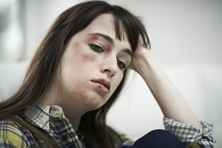intimidated: Female Victim Of Domestic Abuse At Home