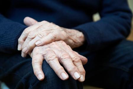 Close-up van de Hogere Mens die lijden aan Parkinson diesease Stockfoto