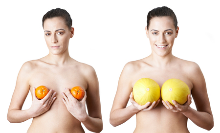 Woman Holding Satsumas And Melons To Illustrate Breast Enlargement Surgery Stock fotó