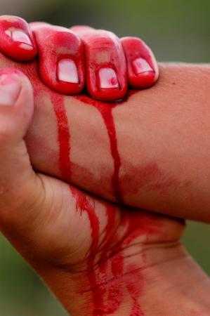 Unf�lle, Verletzungen und Blutungen menschliche Hand, das Blut flie�t
