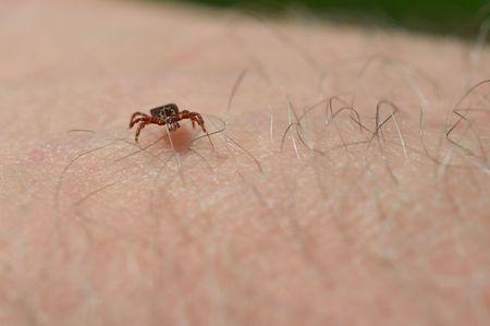 arachnids: Tick on mans arm