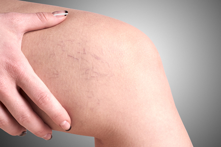 varicose: varicose veins in women