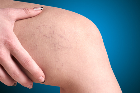 varicose veins: varicose veins in women