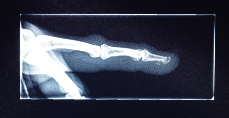 radiological: close up finger x-ray film for check something