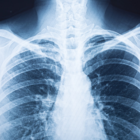 radiological: x-ray film for check your health
