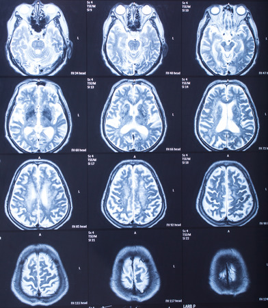 x rays negative: human head X-ray result in hospital