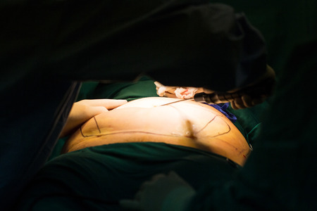 liposuction: Liposuction surgery instrument prepare for operate in surgeon room