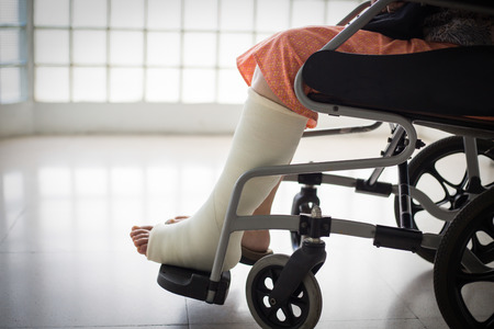 fractured: Senior adult leg injury sitting on wheelchair with plaster foot.