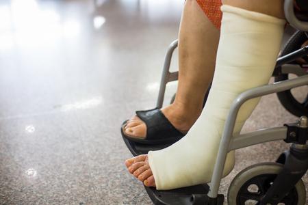 Senior adult leg injury sitting on wheelchair with plaster foot.