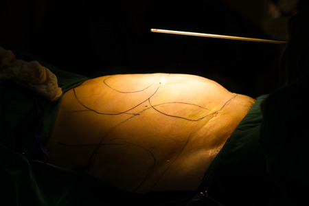 guideline: Liposuction drawing arrows guideline for remove cellulite in surgery room.