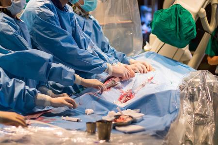 minimally: Heart disease ,doctor operating patient by percutaneous tranluminal coronary angioplasty method
