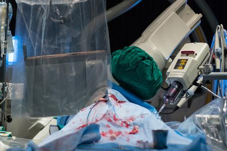 minimally: Xray machine prepare equipment operate patient  who is heart disease  for percutaneous tranluminal coronary angioplasty.