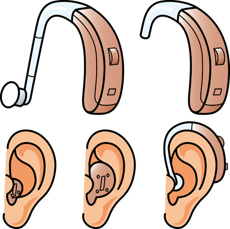 amplification: Hearing aids