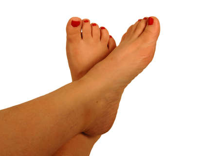 bunion: Dry and cracked feet with peeling nail polish