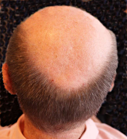 occiput: bald head