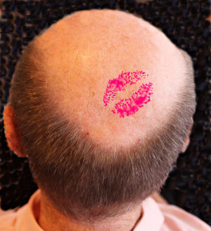 occiput: bald head with a kiss Stock Photo