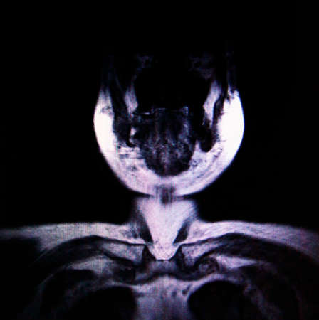 medical imaging: Medical Imaging