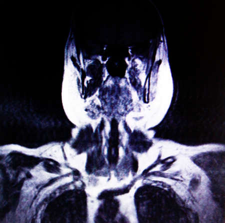 thorax: thorax and neck MR imaging Stock Photo