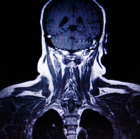 mr: human upper body MR imaging Stock Photo