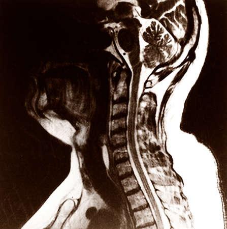 spinal column: spinal column and brain