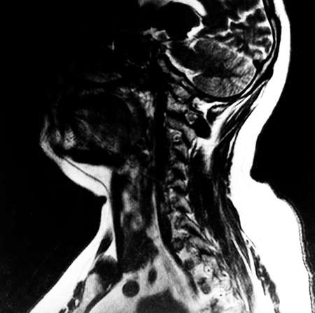 sideview: sideview in a human upper-body and head by xray-photographer Stock Photo