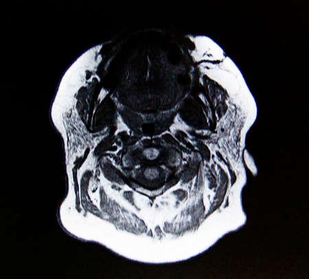 humane: medical imaging of human head