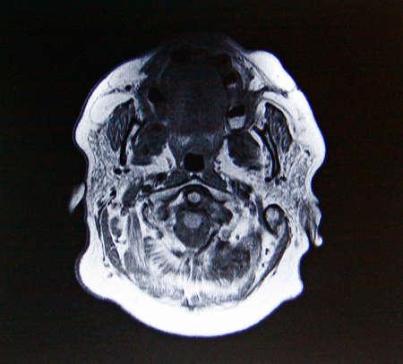 humane: inside human head
