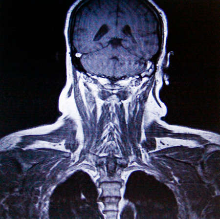 humane: MR imaging of Muscles