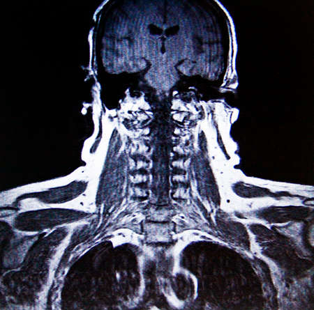 mr: spinal column MR imaging Stock Photo