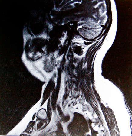 torax: inside mans body Stock Photo