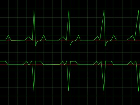 Normal Heart Rhythm electrocardiogram ECG graph with black background Stock Photo - 4957956