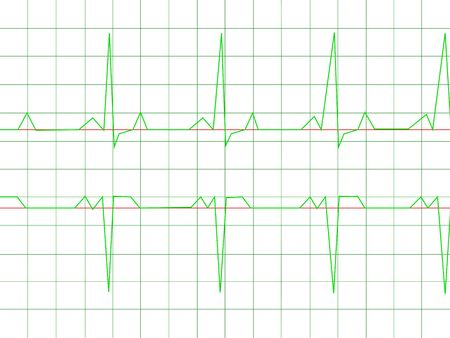 Normal Heart Rhythm electrocardiogram ECG graph with white background Stock Photo - 4967208