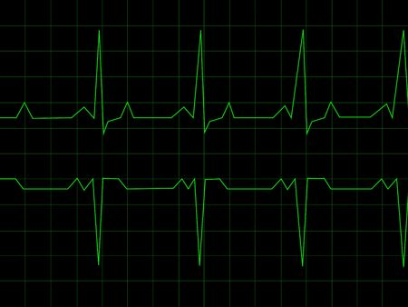 heart monitor: Normal Heart Rhythm electrocardiogram ECG graph with black background