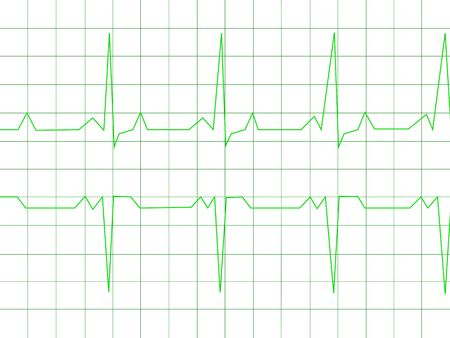 Normal Heart Rhythm electrocardiogram ECG graph with white background