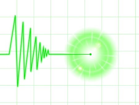 Tremor chart statistic with lines on white background. Stock Photo