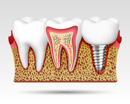 3d teeth in a cut with nerve endings and with an implant . Vector illustration