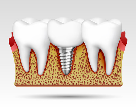 3d teeth in a cut with nerve endings and with an implant. Vector illustration Illustration