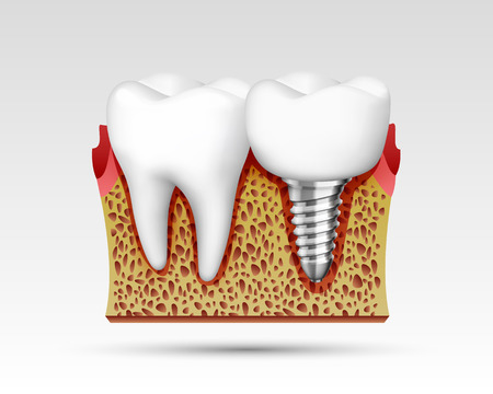 3d teeth in a cut with nerve endings and with an implant. Vector illustration Stock Photo
