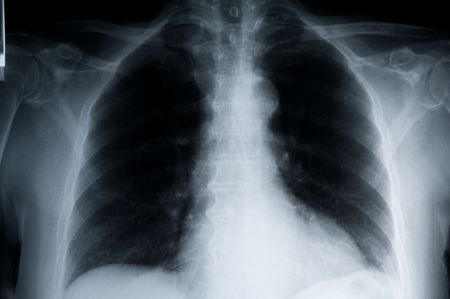 bronchial: detailed x-ray of a human chest landscape