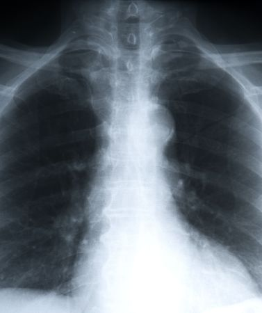 detailed x-ray of a human chest portrait photo