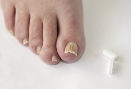 toenail fungus: Foot with fungal toe nail infection
